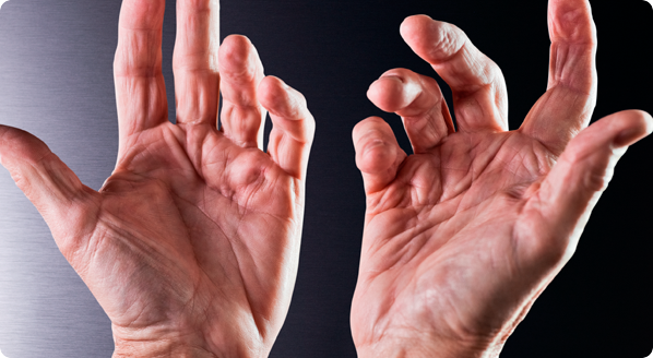 Two dupuytren's hands with multiple fingers bent