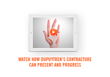 Watch how Dupuytren's contracture presents and progresses