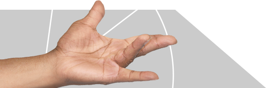Hand with Dupuytren's Contracture