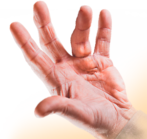 What is Dupuytren's Contracture? | XIAFLEX® (collagenase clostridium histolyticum)